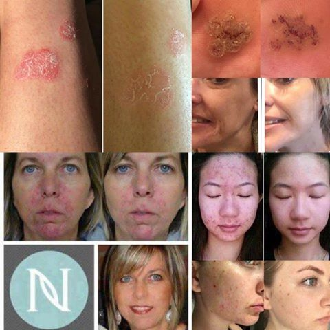 Nerium: A Scientific Breakthrough In Skin Care