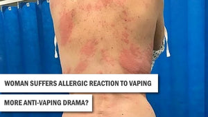 Mother 'suffers an allergic reaction to VAPING'
