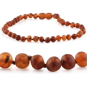 RBA - Grow With Me Baltic Amber Necklace Sets - Raw Cognac