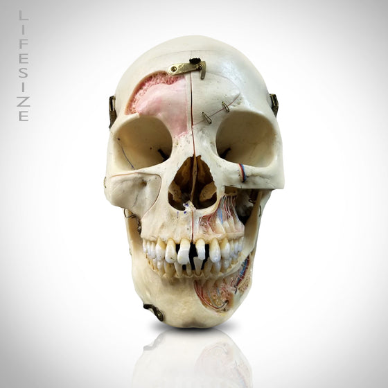 AUTHENTIC HUMAN SKULL ANATOMICAL PREPARATION WITH CUSTOM CASE
