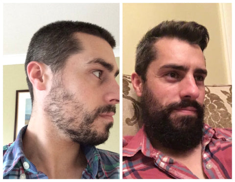 bearded man before and after biotin