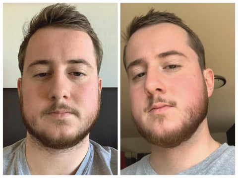 beards before and after taking biotin