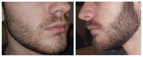 beard before and after taking biotin supplements