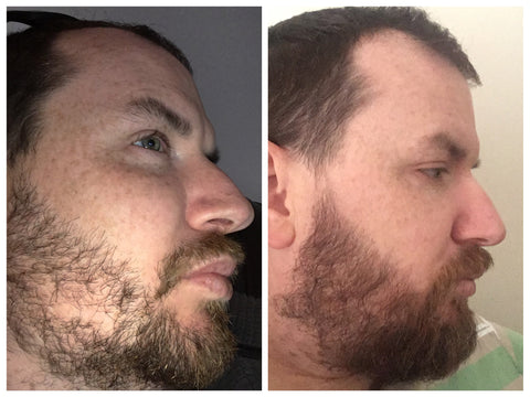 how to fill in patchy beard