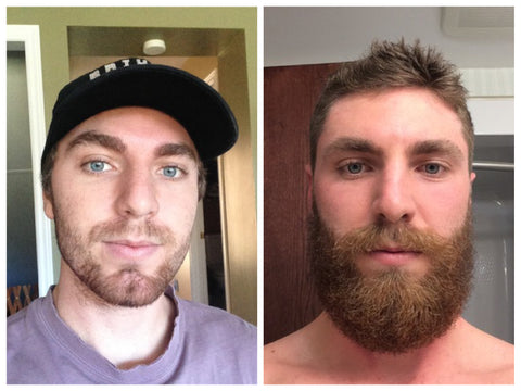 patchy beard before and after photo