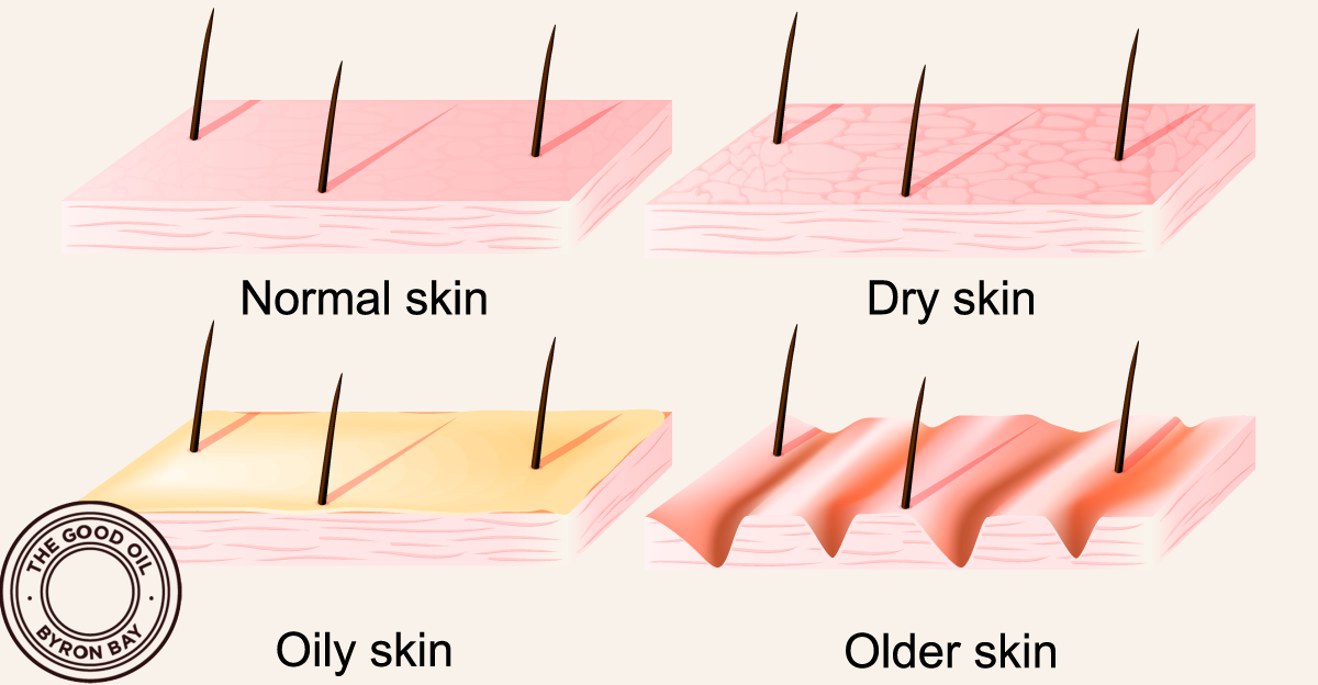 The Good Oil Skin Types