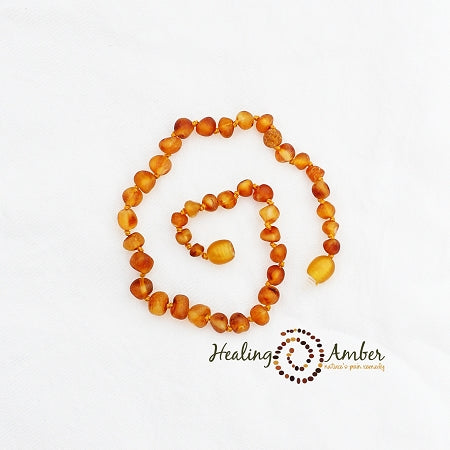 Amber Teething Bracelet/Anklet (5.5 inches)