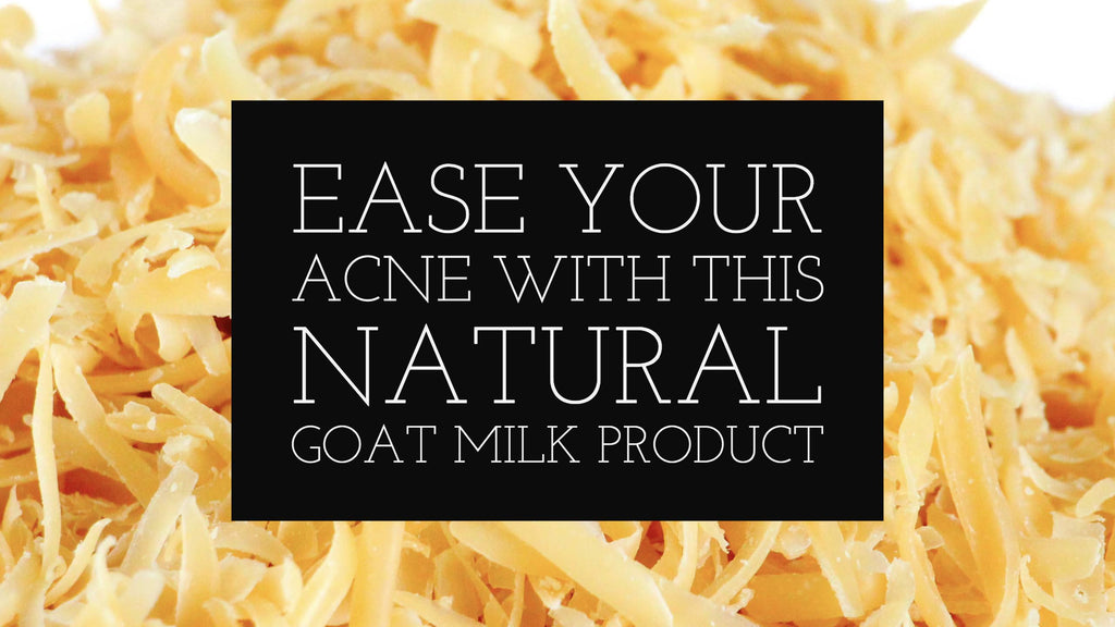 Ease Your Acne With This Natural Goat Milk Product