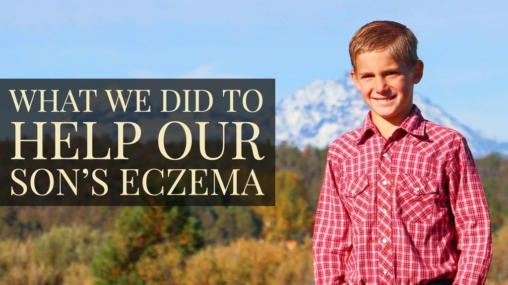 What We Did to Help Our Son's Eczema - Bend Soap Company