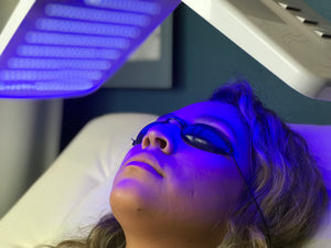 LED Photo Facial Session(s) Blue Light