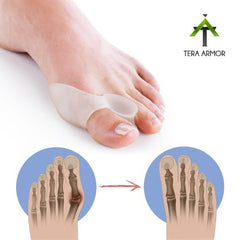 Bunion Corrector - 2 Piece Set