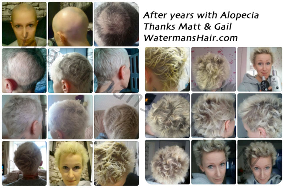 alopecia treatment that works