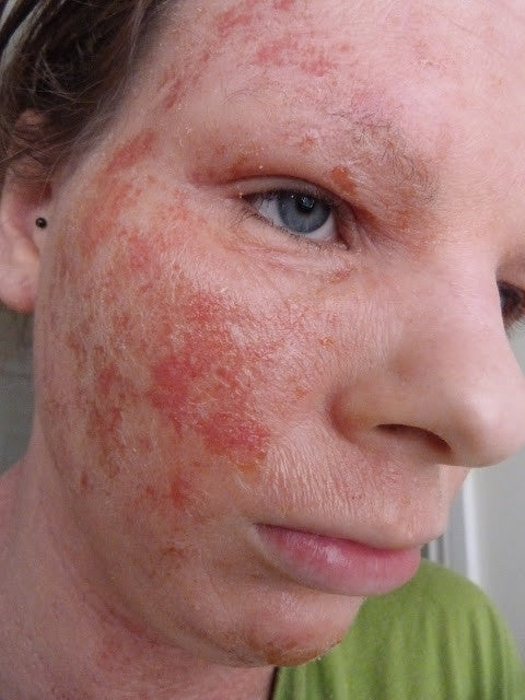 Guest Post: Living With Adult Eczema