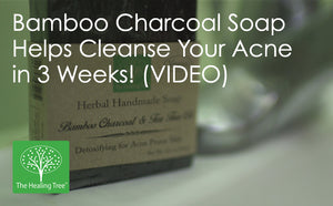 Bamboo Charcoal Soap Helps Cleanse Your Acne in 3 Weeks! (VIDEO)