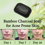 Bamboo Charcoal Soap for Acne Prone Skin
