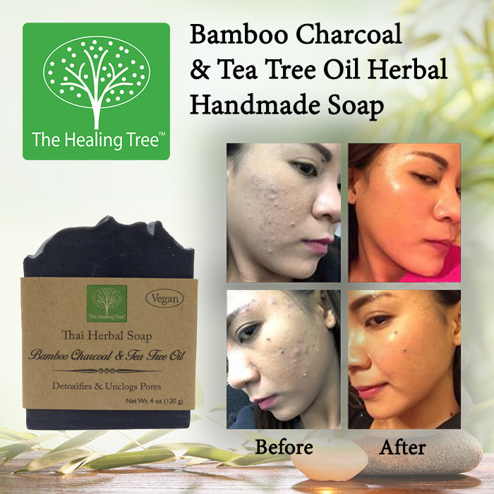 Bamboo Charcoal Tea Tree Oil Handmade Soap For Acne Prone Skin The Healing Tree