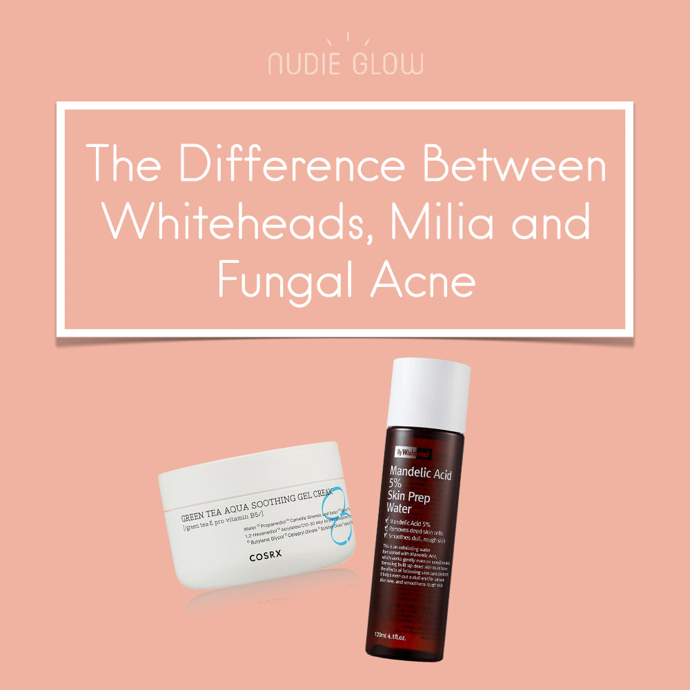 What's the Difference Between Whiteheads, Milia and Fungal