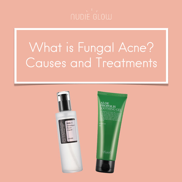 Are those Bumps on Your Skin Fungal Acne?