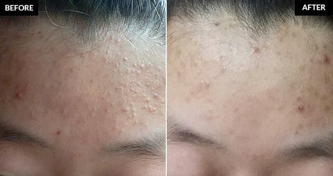 COSRX One Step Pimple Clear Pads Before After Nudie Glow Korean Beauty Australia