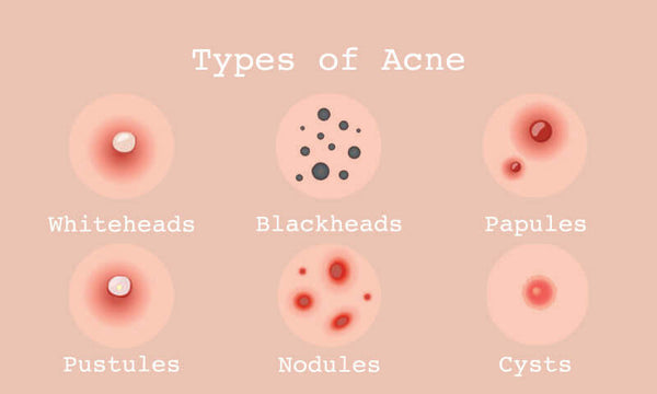 Different Types of Acne Nudie Glow Korean Beauty Australia