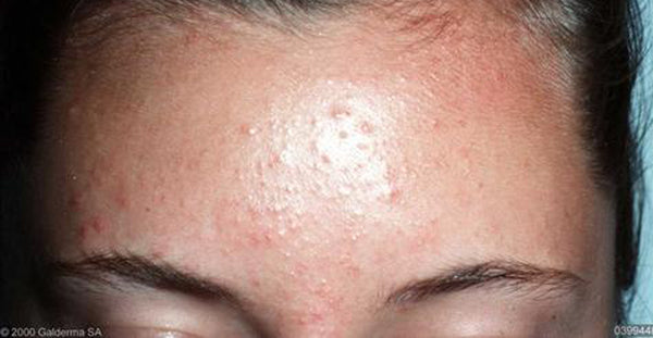 How Fungal Acne Looks Like Example Nudie Glow Australia