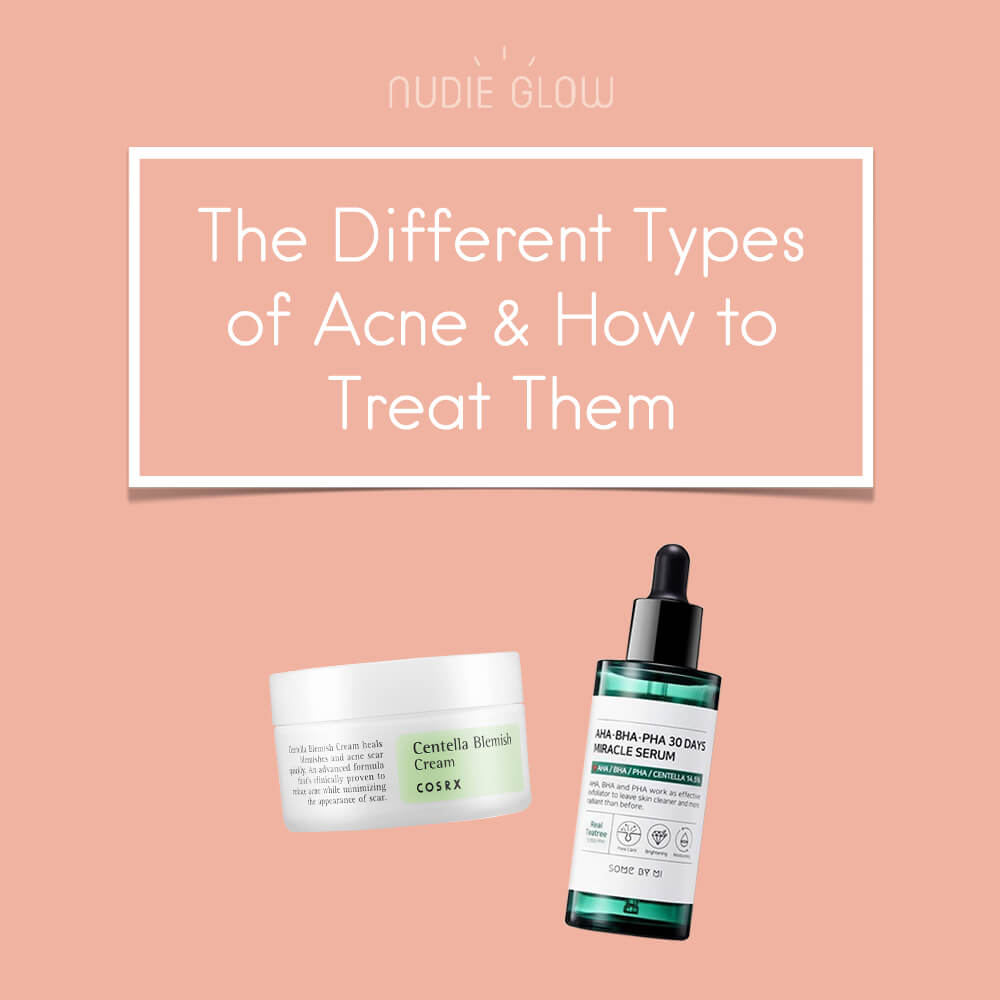 Different Types of Acne How to Treat Them Nudie Blog Korean Beauty Australia