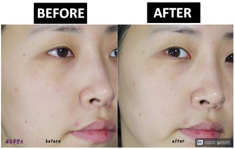 Neogen Bio Peel Gauze Peeling Wine Review Before After Results at Nudie Glow Best Korean Beauty Store Australia