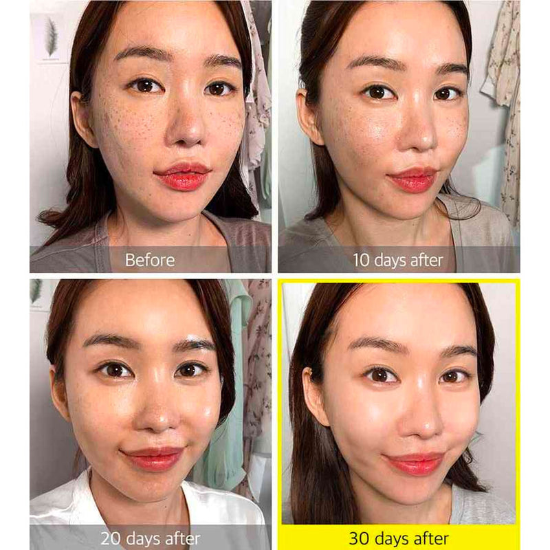 SOME BY MI Yuja Niacin 30 Days Blemish Care Serum Nudie Glow Korean Skin Care Australia