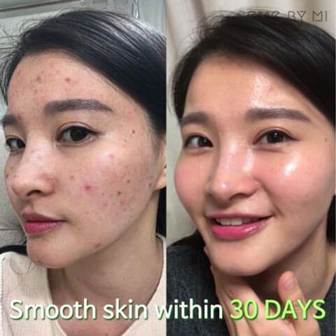 SOMEBYMI AHA BHA PHA 30 Days Miracle Serum Review Result Best Korean Beauty Skincare at Nudie Glow in Australia