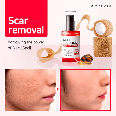 10 Best Korean Beauty Products For Acne Scars Top Products For