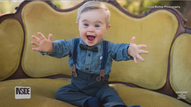 BABY BOY WITH DOWN SYNDROME BECOMES MODEL FOR OSHKOSH B'GOSH