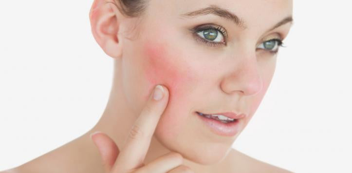 Cure Rosacea Once and For All