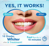 MySmile 3-PC Teeth Whitening Whitener Gel Pen Treatment Refill Pack Only