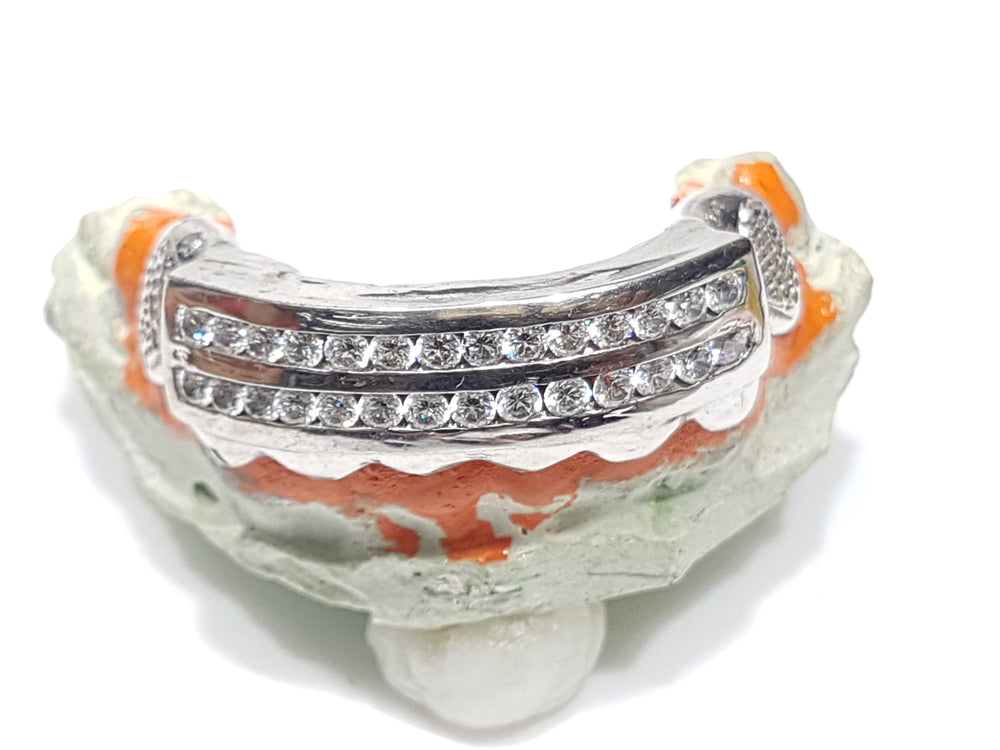 grill-grillz-gold-teeth-white-gold-two-channel-set-diamonds