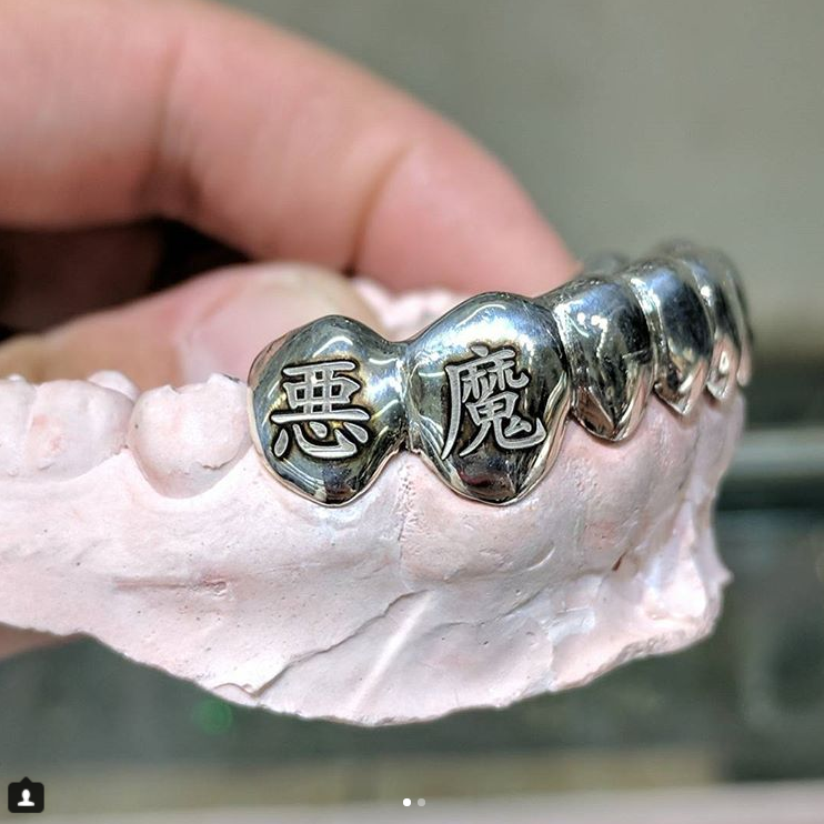 Gold Teeth/Grills – Popular Jewelry