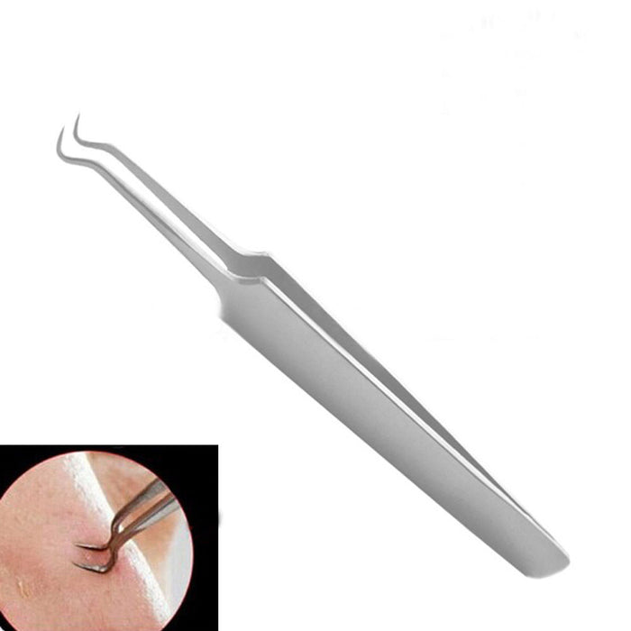 Stainless Steel Blackhead and Comedone Acne Remover