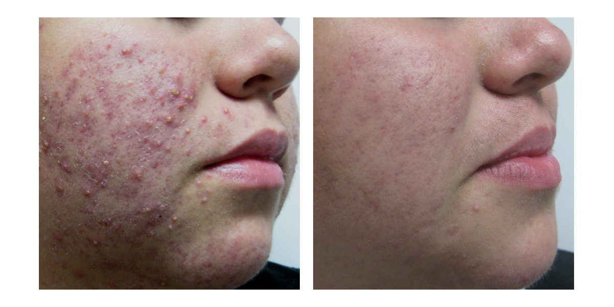Cystic acne before and after photos
