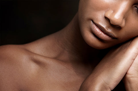 Black Beauty: The Best Defense Against Hyperpigmentation