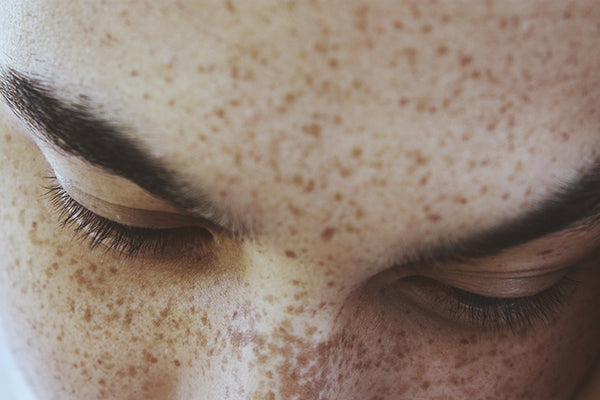 Dear Freckled Beauties