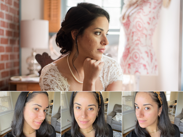 Before photo: bride with acne. After photo: clear skin.