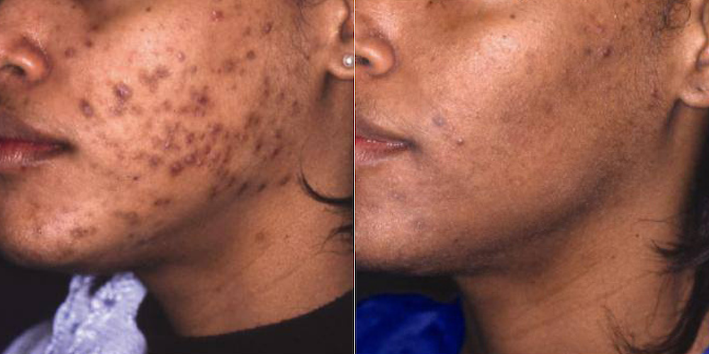 Before and after photos of a dark skin woman with dark spots from acne scars.
