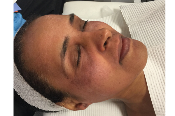 Woman of color with hyperpigmentation