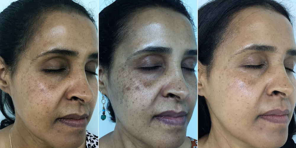 Samia before and after photos showing how dark spots get darker before they get lighter