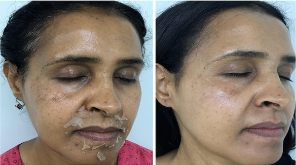 Before and after picture from a chemical peel