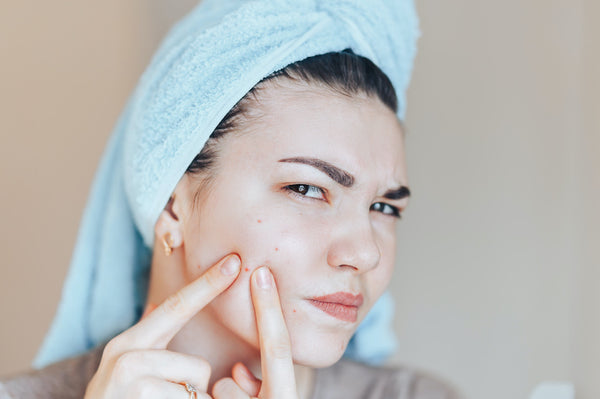 Woman with acne, touching her face