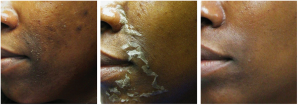 ProPeel before and after