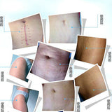 Scar & Stretch Mark Treatment  Repair Pregnancy Scars and Operation Incisions