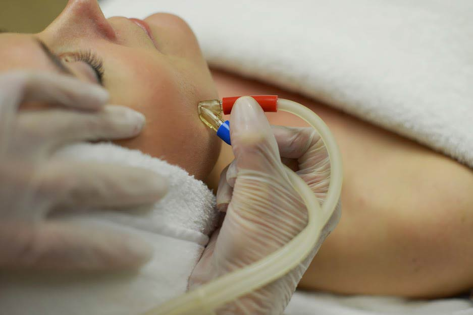MICRO DERMABRASION Beverly Hills