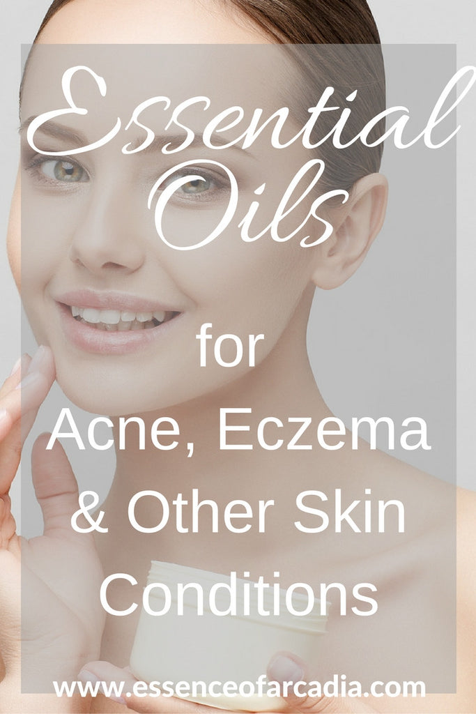Essential Oils for Acne, Eczema & Other Skin Conditions