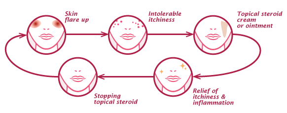 eczema vicious cycle